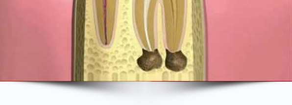 endodontia-interna-odontologia-avancada