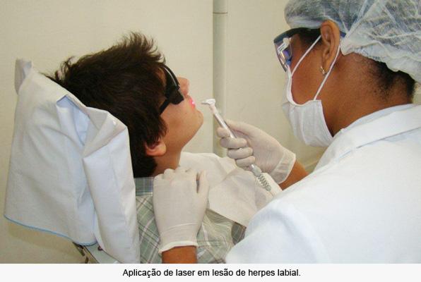 laserterapia-foto-interna-odontologia-avancada