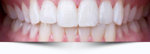 oclusao-interna-odontologia-avancada
