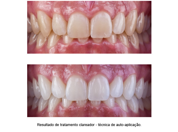 odontologia-estetica-(foto2)-interna-odontologia-avancada