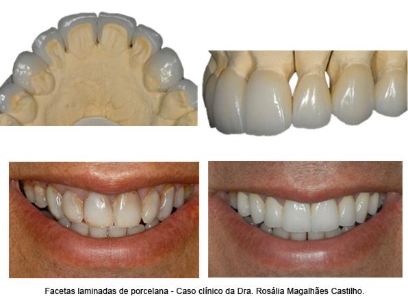 odontologia-estetica-(foto3)-interna-odontologia-avancada