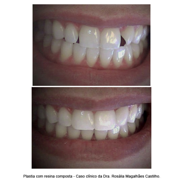 odontologia-estetica-(foto4)-interna-odontologia-avancada