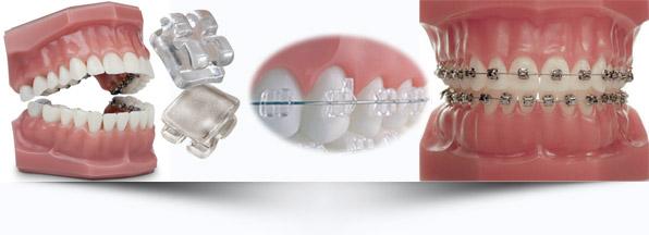 ortodontia-interna-odontologia-avancada