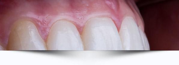 periodontia-interno-odontologia-avancada