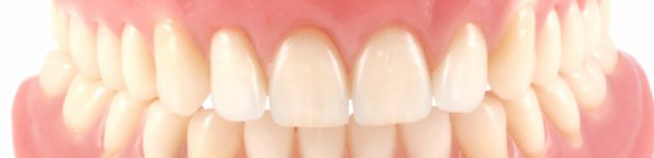 protese-fixa-movel-interna-odontologia-avancada