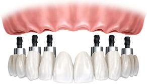 Próteses sobre Implantes